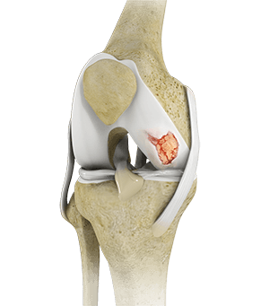 Knee Cartilage Restoration